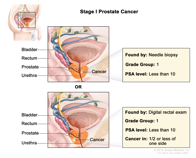 prostate cancer t2c explained
