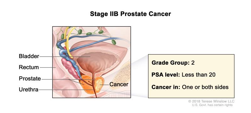 prostata psa 8 8 ng ml 2016
