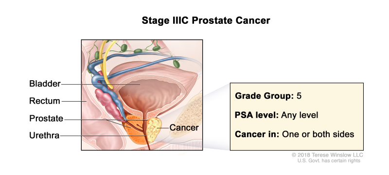 Prostate Cancer Treatment (PDQ®) - PDQ Cancer Information