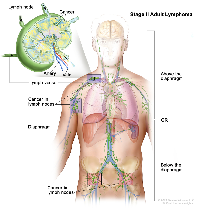 Adult Non-Hodgkin Lymphoma Treatment (PDQ®) - PDQ Cancer