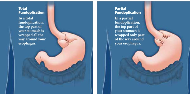 There are two types of surgery: total fundoplication and partial fundoplication.