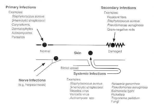 Figure 98-1. Spread of infections to skin.