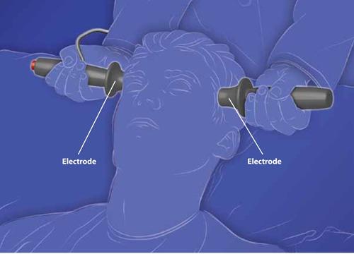 electroshock therapy diagram wiring diagram online Electroshock Therapy for Depression therapies for treatment resistant depression comparative electroshock therapy procedure electroshock therapy diagram