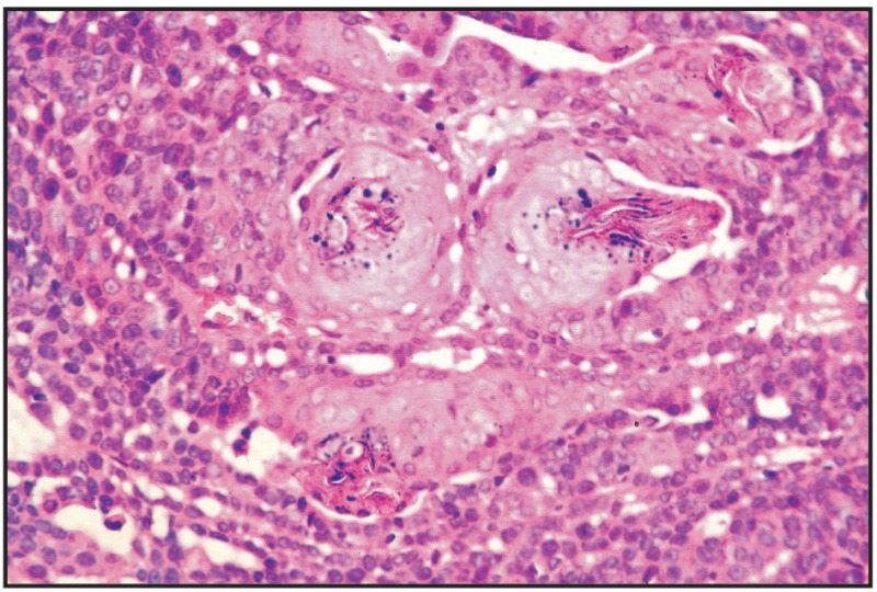 Fig. 11.26. Basaloid adenoma, mammary gland, dog.