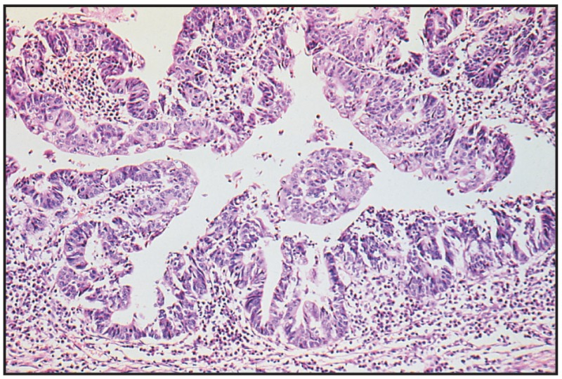 Fig. 8.34. Adenocarcinoma of recto - anal jonction.