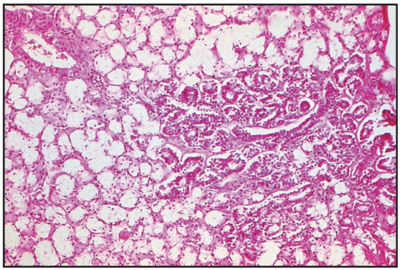Fig. 8.5. Hyperplasia, parotid salivary gland.