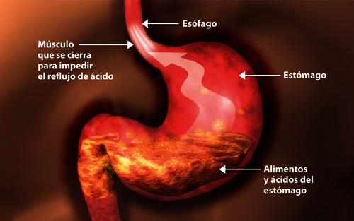 Que medicamento se puede tomar para el reflujo gastrico
