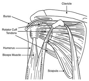 This illustration shows the main structures of the shoulder. The bursa, rotator cuff tendons, humerus, biceps muscle, clavicle, and scapula are labeled.