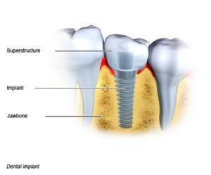 Dental Implant - National Library of Medicine - PubMed Health