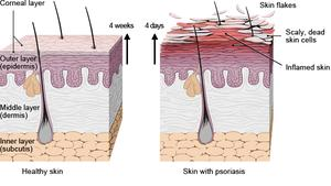 Diagram of healthy skin layers and skin with plaque psoriasis