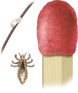 Smaller than the head of a match: adult louse and nit