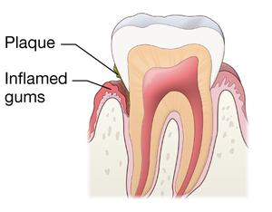 A diagram of a tooth with gingivitis. The tooth with gingivitis has plaque and inflamed gums.