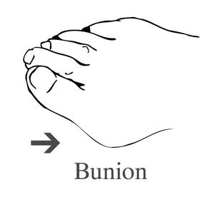 Drawing of a foot showing a bunion.