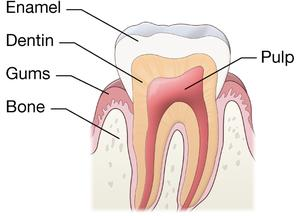A diagram of a normal tooth. The parts of the normal tooth include the enamel, dentin, pulp, gums, and bone.