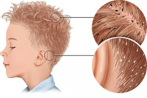 Head lice and nits in hair
