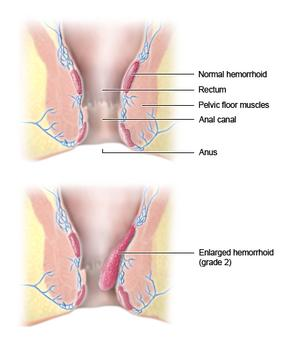 Fucking Incredible hemmorhoids anus diagram photo cock harmonious