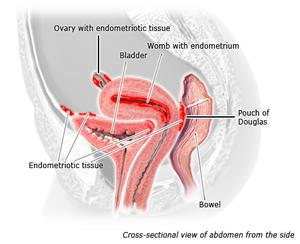 Illustration of endometriotic tissue