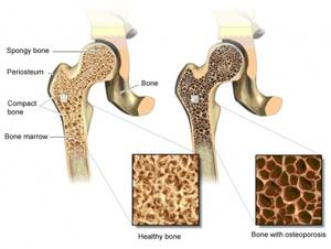 Diagram of healthy bone and bone with osteoporosis