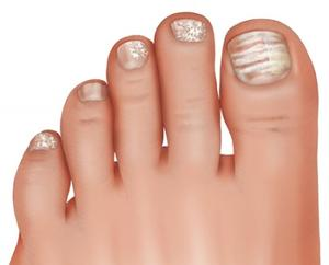Image of superficial fungal infection on toenails