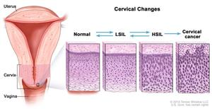 Cervical changes. The cervix is the lower, narrow end of the uterus that forms a canal between the uterus and vagina. Before cancer cells form in tissues of the cervix, the cells of the cervix go through abnormal changes called dysplasia. There are different types of dysplasia. Mild dysplasia, called low-grade intraepithelial lesion (LSIL) is one type. Moderate or severe dysplasia, called high-grade intraepithelial lesion (HSIL) is another type of dysplasia. LSIL and HSIL may or may not become cancer.