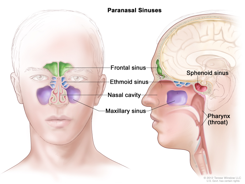 sphenoid sinus - national library of medicine - pubmed health, Sphenoid