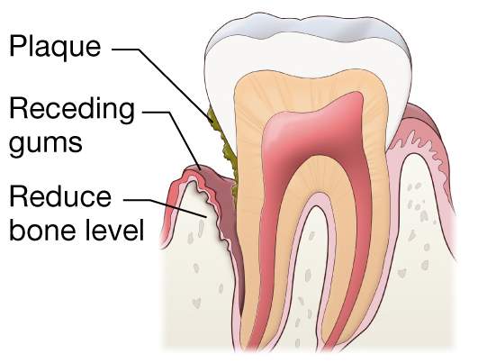 Periodontium National Library Of Medicine Pubmed Health