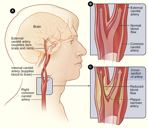 Carotid Arteries National Library Of Medicine Pubmed Health