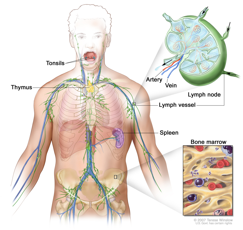 Lymph system; drawing shows the lymph vessels and lymphorgans including the lymph nodes, tonsils, thymus, spleen, and bone marrow. One inset shows the inside structure of a lymph node and the attached lymph vessels with arrows showing how the lymph (clear fluid) moves into and out of the lymph node. Another inset shows a close up of bone marrow with bloodcells.