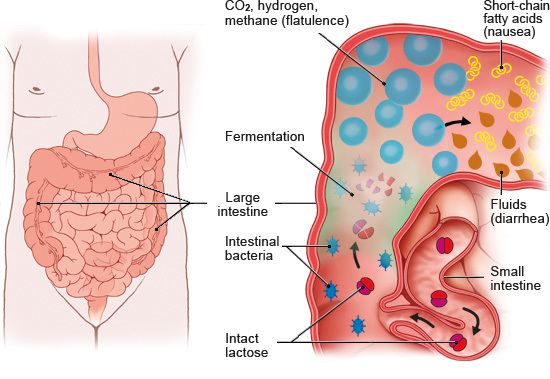 Illustration: Digestion with lactose intolerance