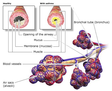 Illustration: Structure of the airways in the lungs: healthy bronchi and bronchi narrowed by asthma – as described in the article